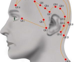 Help for headaches: lifestyle tips to aid your acupuncture treatment